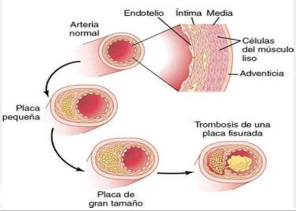 Hipercolesterolemia, dieta para bajar el colesterol